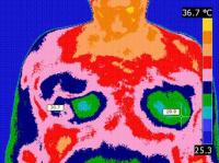 The Infrared Thermography at Clinic Practice Dr. Gheorghe O. SERBU, MD, BCCT Romanian Society of Thermography